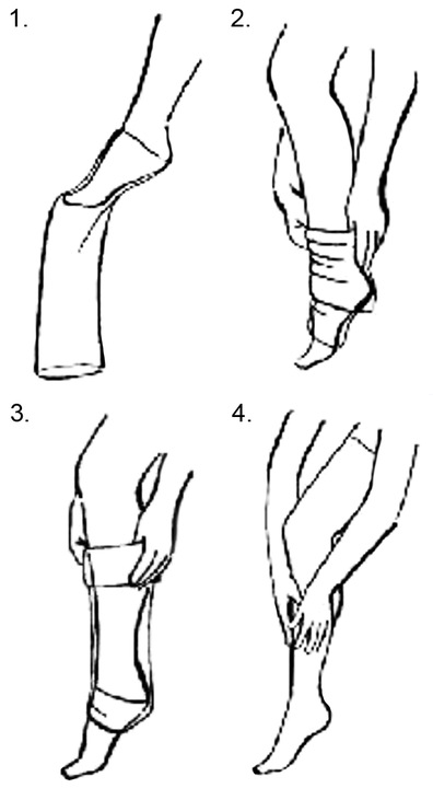 varicose device recenzii umflarea cu tratamentul venelor varicoase